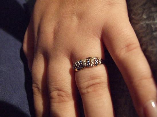 Jak zdjąć pierścionek ze spuchniętego palca